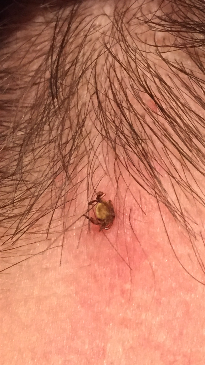 First Aid For Dog Tick Bites